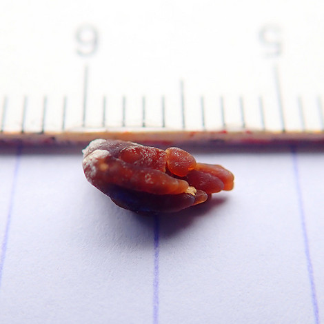 Kidneystone_20180423_0005m